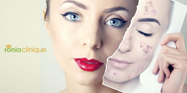 Fotodepigmentace na odstranění pigmentových skvrn