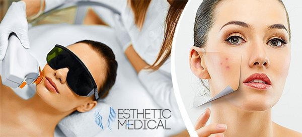 Ošetření pleti proti vráskám, pigmentaci či akné