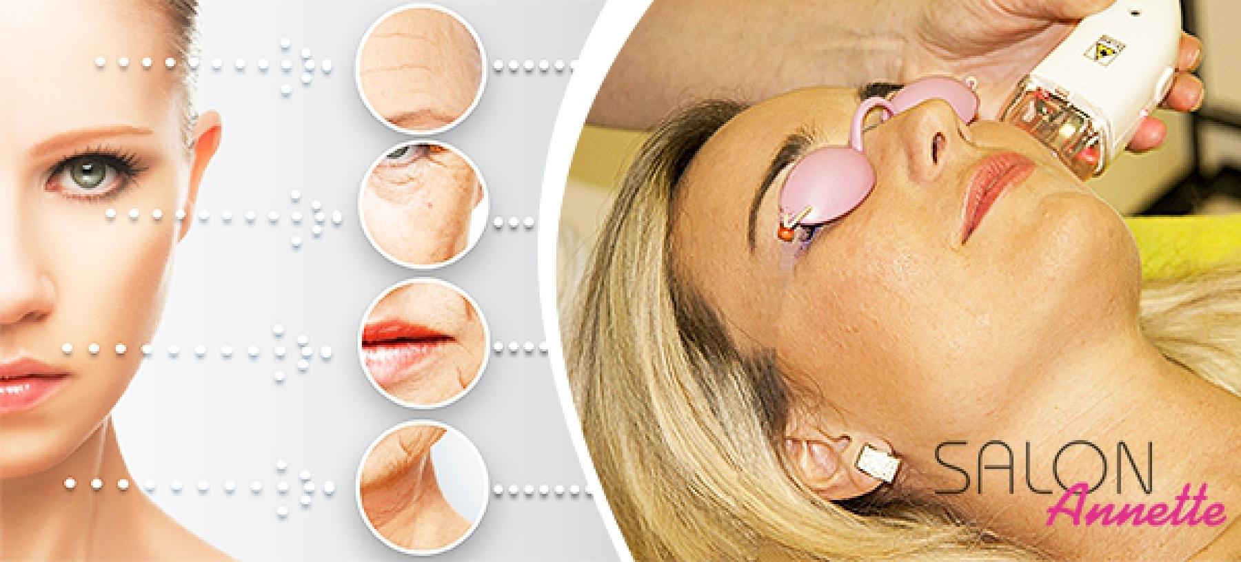 PreFacing – laserové ošetření s aplikací collagenu